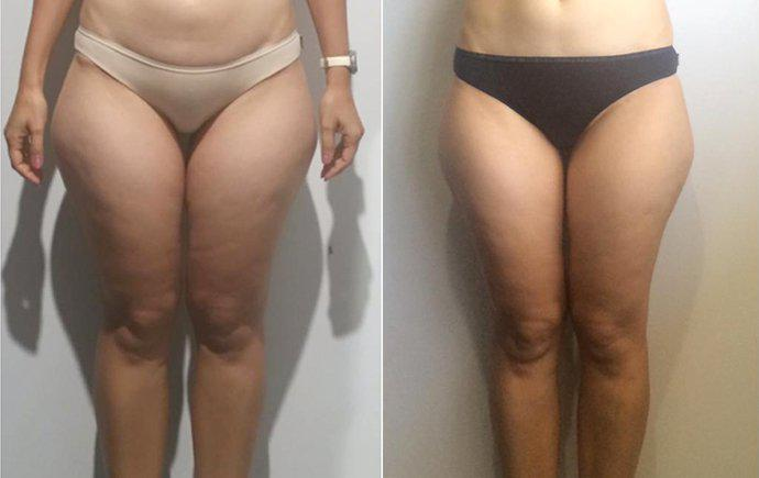 Cellulite Treatment Brisbane, Cellulite Removal - Hypoxi Newstead